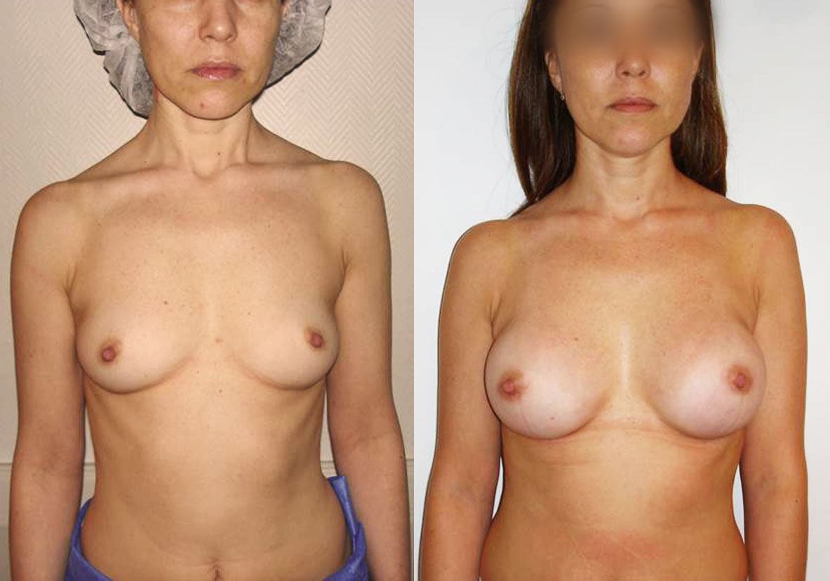 Aumento Mamario Madrid Mamoplastia de Aumento